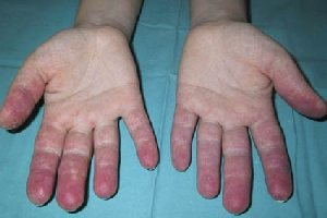 фото аллергия на пальцах рук