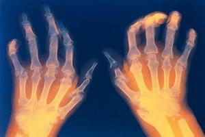 соэ при ревматоидном артрите, ответы врачей, консультация