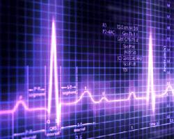 Электрокардиография: о чем расскажет результат ЭКГ?