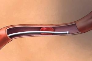 Лечение больных ишемическим инсультом