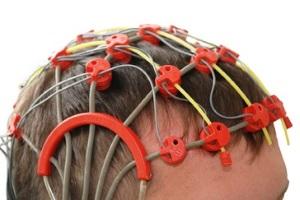 К вопросу о тактике лечения эпилепсии