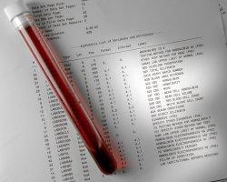 Аутонозод на крови при онкологии