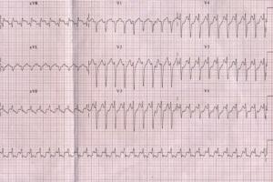 Пароксизмальные суправентрикулярные тахикардии: диагностика и лечение