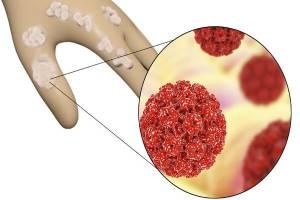 Современные представления о папилломавирусной инфекции