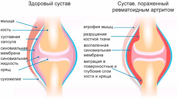 Первые симптомы ревматоидного артрита, методы лечения ...