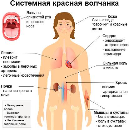 Аднексит  причины симптомы лечение народные средства