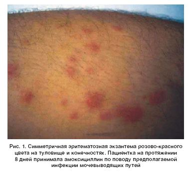оборудование; Душ, каталог сыпи при инфекционных заболевания нравится