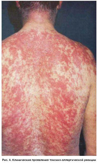Какая реакция может быть на прививку от гепатита и полиомиелита