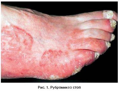 Грибок ногтей лечение в народной медицине