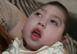 Родился ребенок без мозга