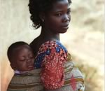 evaluation of anaemia in ghanaian child
