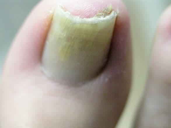 Грибок ногтей современные способы лечения