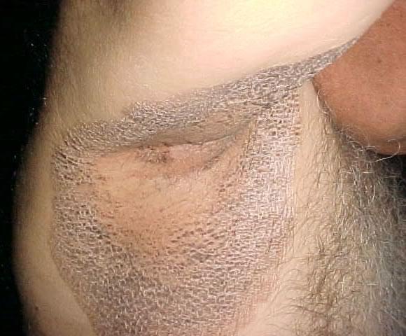 Паховый гипергидроз
