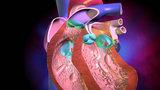 Как работают сердечные клапаны