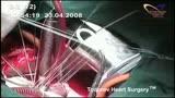 Клапансохраняющие методики — от шовной пластики до имплантации опорных колец