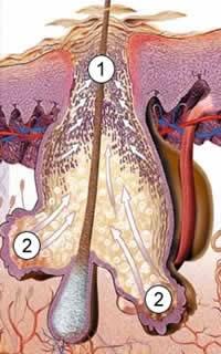 как колоть дексаметазон внутримышечно при аллергии