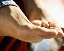 Дерматомикозы: кандидоз и эпидермофитии
