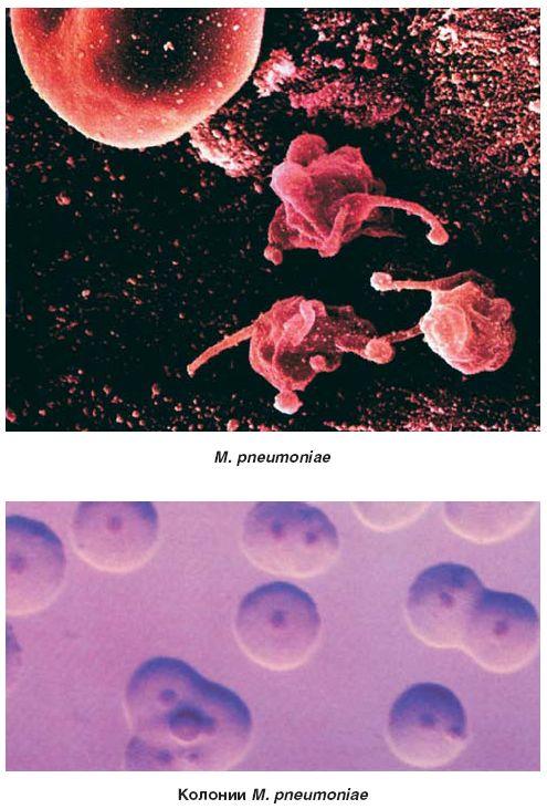 Миоплазма фото