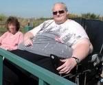 Самый толстый в мире человек перенес операцию, помогающую похудеть