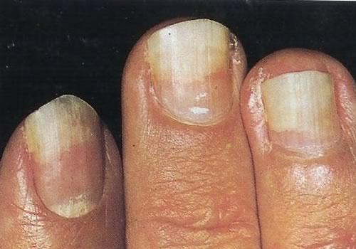 355Заболевания ногтей на руках и описание онихолизис