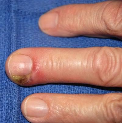 Видны отёк, гиперемия и абсцедирование мягких тканей пальца.  Подногтевой панариций - это скопление гноя под ногтевой...
