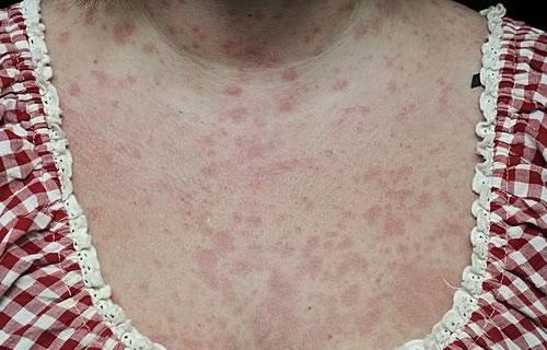 18. Дерматиты и аллергические дерматозы.