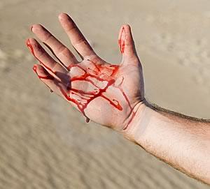 Кровотечение через кожу