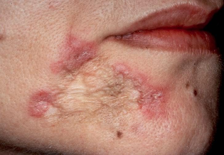 паразитарные заболевания кожи фото