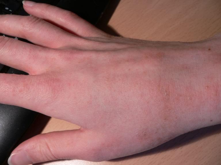 аллергия сыпь на руках фото