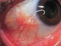 как снять аллергию с глаз