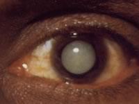 Катаракта – самая частая причина снижения зрения у пожилых людей