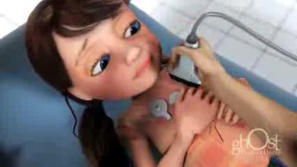 Как врачи вылечили больное сердце Эмили