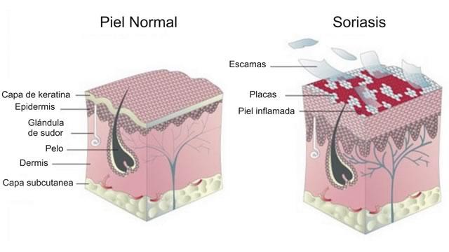 Что такое псориаз