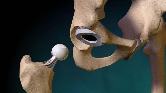 Эндопротезирование тазобедренного сустава ➤ Медицинский портал ...