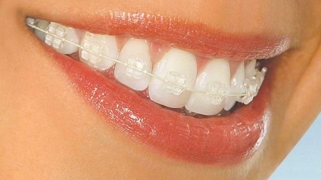 Ортодонтия. Брекет-системы.