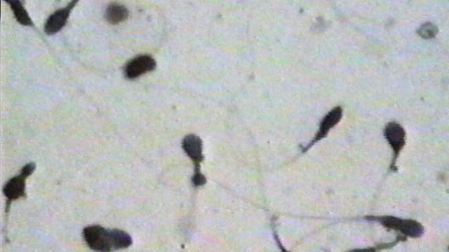 kolichestvo-i-podvizhnost-spermatozoidov
