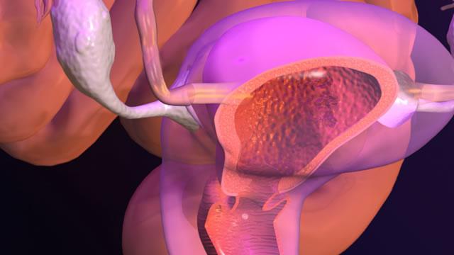 "Эндометриоз матки - что это значит Медицинский портал ""health-ua.org"""