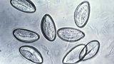 Острицы стали причиной аппендицита
