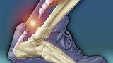 Разрывы ахиллова сухожилия и лечение
