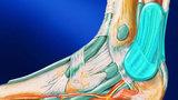 Операция на ахилловом сухожилии