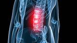Как лечить боль в спине с помощью инъекций?